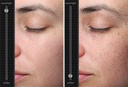 simultation age de la peau Visia