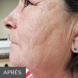 InnoPen peau après