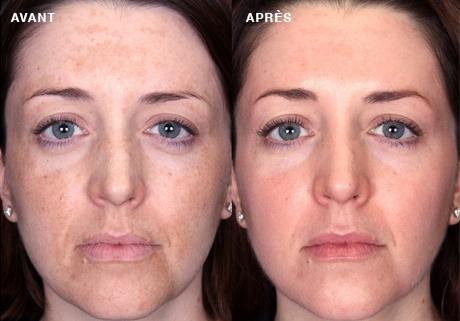 Mélasma ou masque de grossesse: Avant-après
