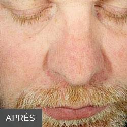 Oxygeneo homme: Après